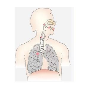 Минимально-инвазивная хирургия в области лечения рака легких