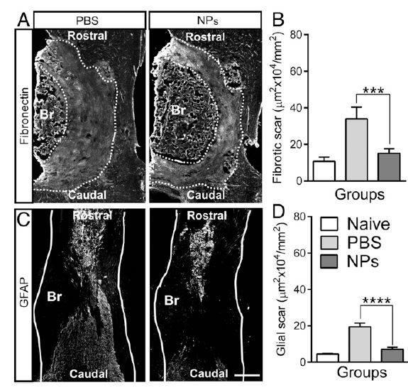 Наночастицы восстановили спинной мозг мышей после травмы