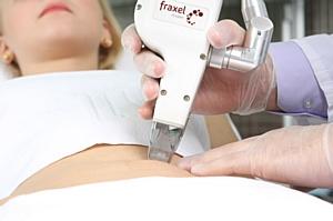 В клиниках Telo's Beauty в июне удаление растяжек с помощью Fraxel со скидкой до 30%