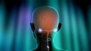 St. Jude Medical представляет данные рандомизированного клинического испытания, демонстрирующие преимущества использования нейромодуляции в лечении хронической мигрени
