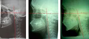 «Краниомандибулярная дисфункция нижнечелюстного сустава»
