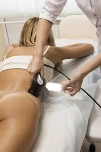Ультразвуковая Кавитация – липосакция без операции