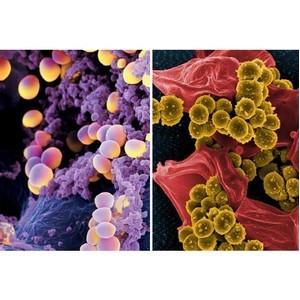 Ученые КФУ показали антибактериальное действие нового соединения