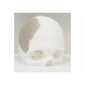 Реконструкция черепа в Израиле с помощью полимерного протеза