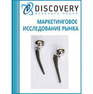 Анализ рынка эндопротезов суставов и приспособлений для остеосинтеза в России