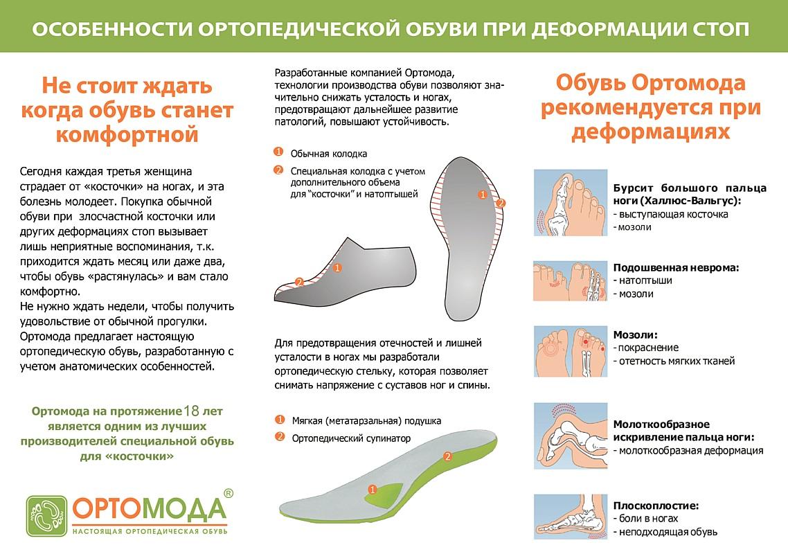 Обувь для стоп с деформацией в области сустава большого пальца