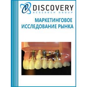 Анализ рынка стоматологических имплантов в России