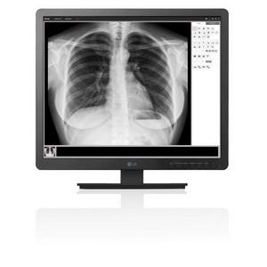 LG представит обновленную линейку устройств для передачи медицинских изображений на Medica 2017