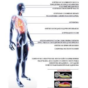 Адронотерапия. Новое оружие в борьбе против рака