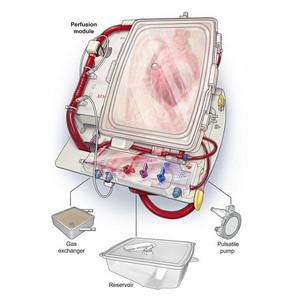 Компания TransMedics разработала уникальную кардиосистему OCS™ Heart