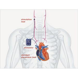 Минздрав Израиля дал разрешение компании BioControl Medical на клинические испытания CardioFit