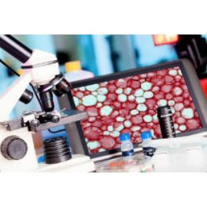 Новости онкологии: израильские ученые разрабатывают механизм самоуничтожения раковых клеток