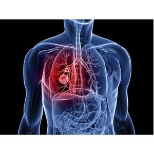 В НМИЦ радиологии пройдет День открытых дверей по диагностике рака легких