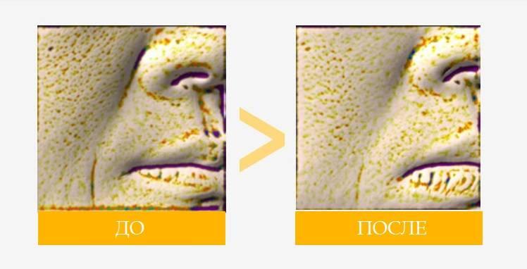Результаты применения сыворотки с идебеноном в течение 4 недель.