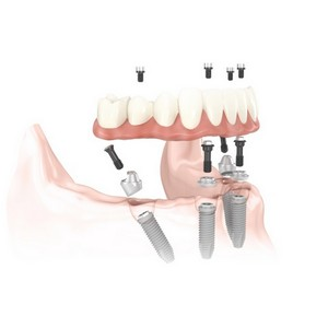 Протезирование зубов на 4 имплантах в московской клинике Ладент