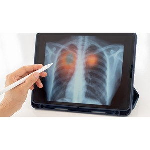 Сбербанк внедряет ИИ-модель диагностики Covid-19 в медцентрах столицы