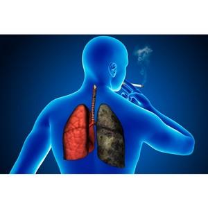 Что делать курильщику, если поставлен диагноз рак?