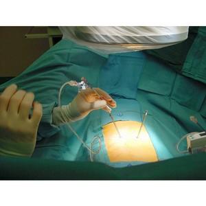 Кифопластика как метод успешного лечения повреждений и травм позвонков