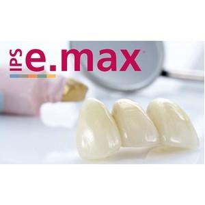 Безметалловая керамика e.max – успешное применение в Ладент
